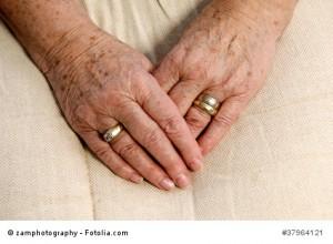 Altersflecken - das kann man tun